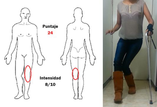 Figura 2. Rodilla izquierda fue el sitio escogido por la paciente de Bogotá como uno de sus peores dolores. Nótese el máximo puntaje en la encuesta S-LANSS lo cual sugiere un dolor de tipo neuropático. En la misma pierna la paciente manifiesta pérdida de la fuerza e inestabilidad de la rodilla que dificulta su marcha (foto de la derecha) donde se observa la necesidad de apoyarse con bastón y uso de una muñequera para estabilizar la mano del mismo lado en esta paciente con un cuadro clínico tan severo.