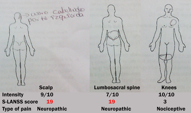 Figure 3. Using the survey S-LANSS patient Maria Jose rated the scalp and lumbosacral spine pains as neuropathic, while knee pain was rated as nociceptive pain consistent with crackles and crepitations she suffers when using this joint.