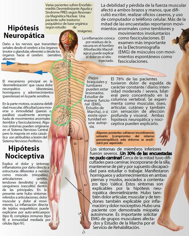 Figura 9. Esquema de los principales síntomas asociados al dolor de miembros superiores, espalda y miembros inferiores. El compromiso severo de la marcha en el 30% de las encuestadas es un hallazgo devastador.