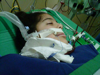 Figure 5. Valentina hospitalized and on a ventilator in the Intensive Care Unit. Plasmapheresis, a procedure that cleans blood from autoantibodies, saved her life.