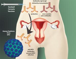 Eng-Fig1-Pelvis - HPV